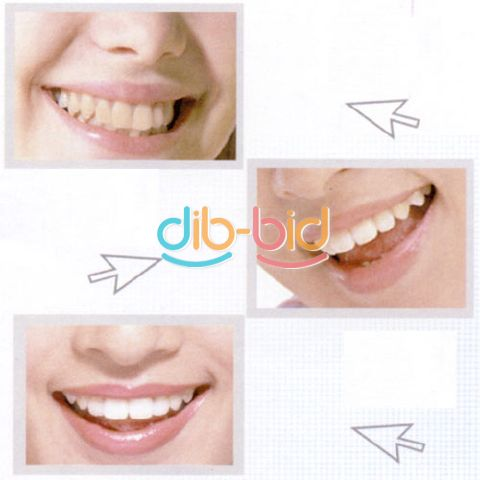 Mouth Dental Teeth Whitening Trays Bleaching Tooth Whitener